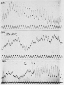Human brain waves first recorded by Hans Berger